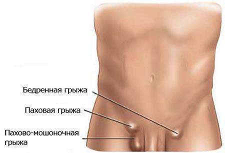 Как диагностируется паховая грыжа у мужчин?