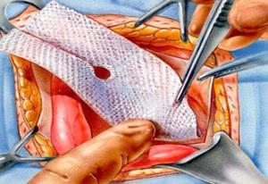 Грыжа паховая у женщин: операция, удаление