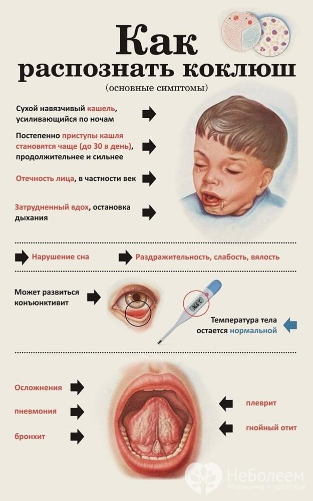 Симптомы и лечение коклюша
