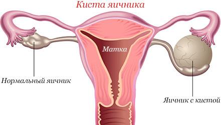 Диета при поликистозе яичников (СПКЯ)