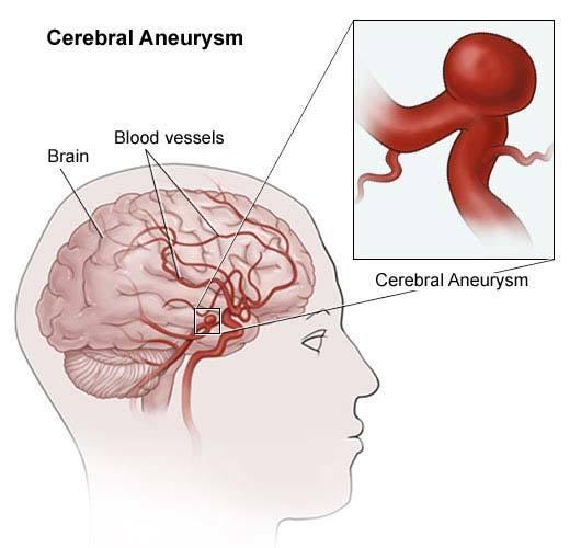Симптомы и лечение аневризмы