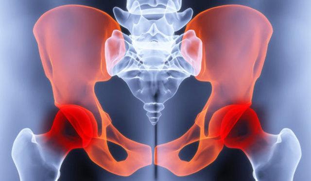 Диета при коксартрозе тазобедренного сустава