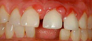 Язвы во рту: причины и лечение язв на языке, на десне