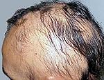 Симптомы и лечение алопеции