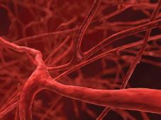 Симптомы и лечение артериальной гипертонии. Гипертонический криз