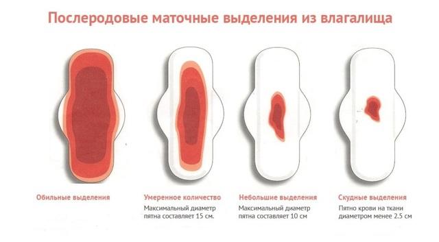 Сколько идут выделения после родов. Норма сколько длятся лохии после кесарева сечения