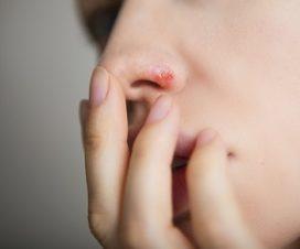 Диета при герпесе на теле, губах и генитальном герпесе