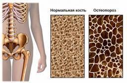 Лечение перелома шейки бедра