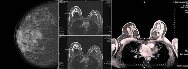 Причины выделений из грудных желез при надавливании, при беременности