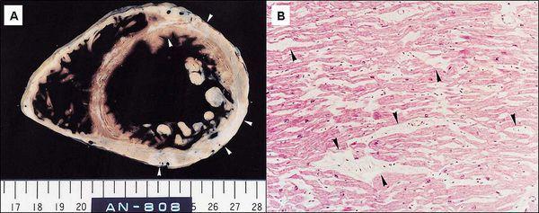 Миокардиодистрофия: симптомы и лечение дистрофии миокарда