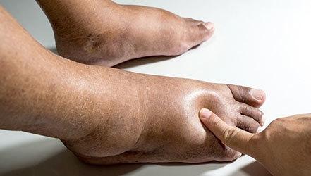 Диета при лимфостазе нижних конечностей