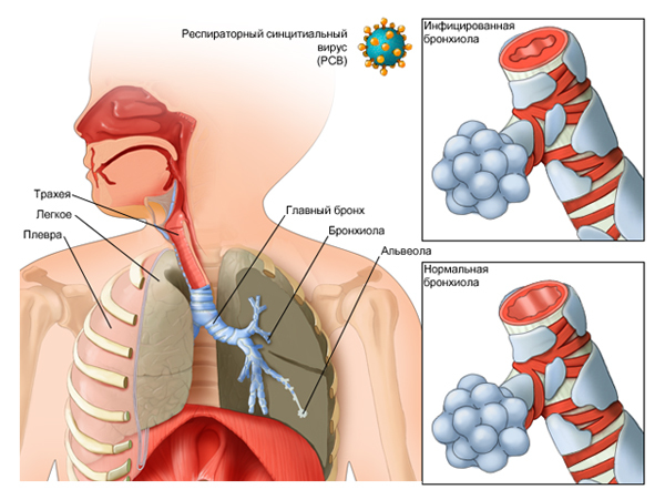 Лечение бронхиолита у детей и взрослых. Облитерирующий бронхиолит