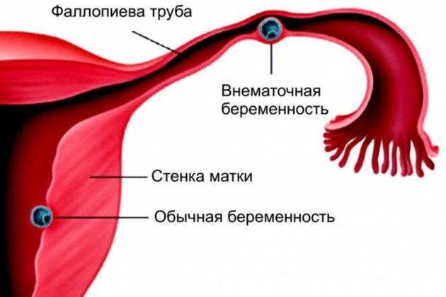 Кровянистые коричневые выделения в середине цикла, перед месячными, после них