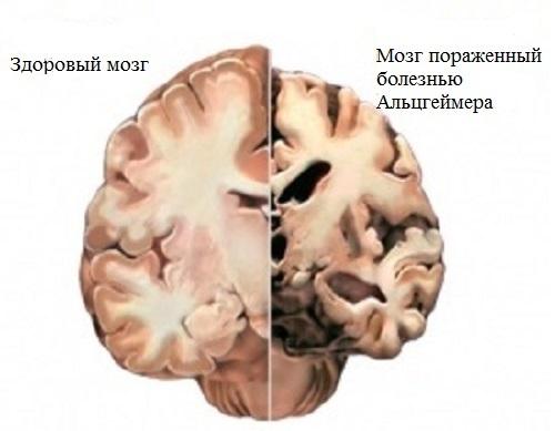 Болезнь Альцгеймера по-разному проявляется у людей разных рас