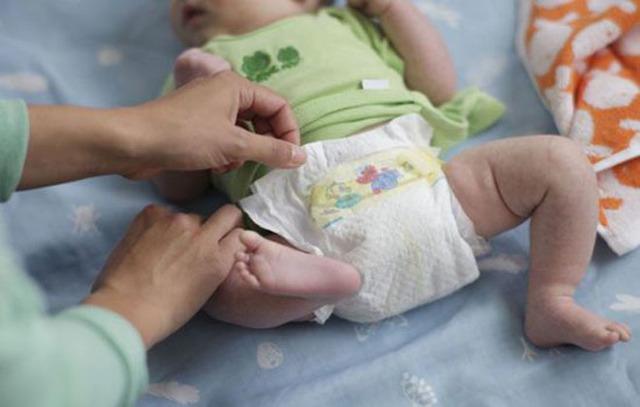 Почему кровит пупок у новорожденного. Что делать, как и чем обрабатывать правильно