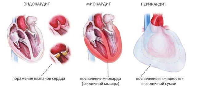 Неревматические кардиты у детей и новорожденных