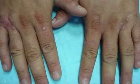 Кольцевидная гранулема: лечение у детей, фото