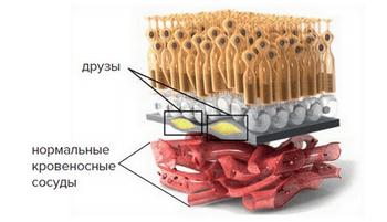 Макулодистрофия сетчатки глаза: лечение макулярной дегенерации