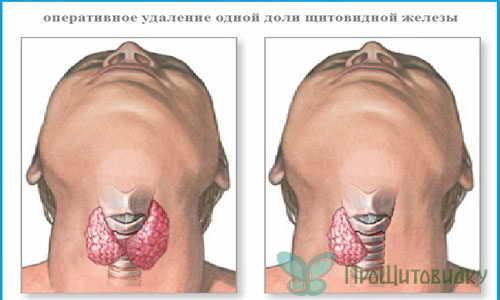 Диета после удаления щитовидной железы