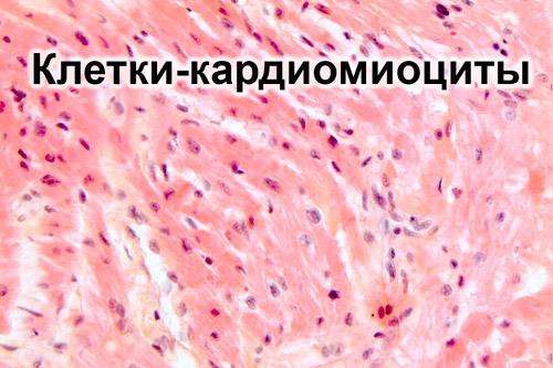 Изменение миокарда. Что такое метаболические, умеренные, дистрофические, рубцовые и неспецифические изменения миокарда