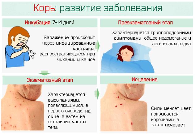 Корь у детей и взрослых, симптомы и лечение