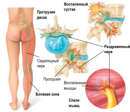 Лимфаденопатия: что это такое, виды, код по МКБ-10