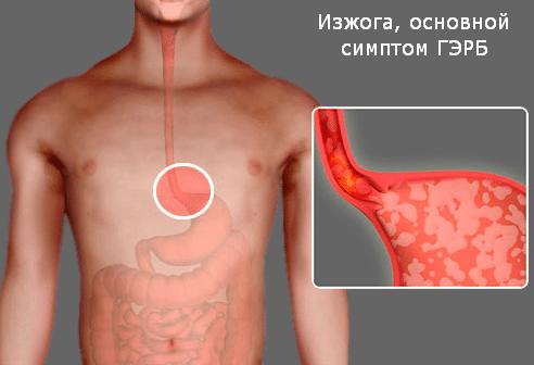Гастроэзофагеальная рефлюксная болезнь (ГЭРБ): симптомы, лечение
