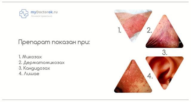 Раствор и крем Экзодерил: инструкция по применению, цена, отзывы и аналоги