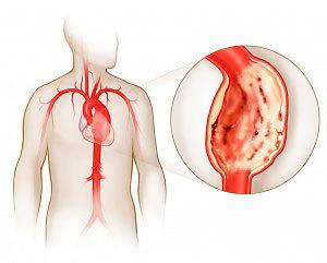 Диета при атеросклерозе сосудов нижних конечностей, сердца, головного мозга