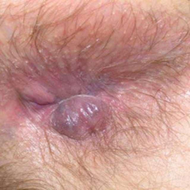 Симптомы и лечение геморроя