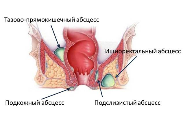Абсцесс легкого: рентгенологические признаки на рентгенограмме ... | 393x640