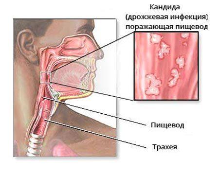 Симптомы и лечение кандидоза