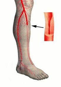 Облитерирующий эндартериит сосудов нижних конечностей: лечение и симптомы
