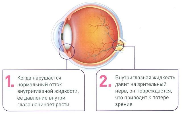Глазные капли Тимолол: инструкция по применению, цена, отзывы и аналоги