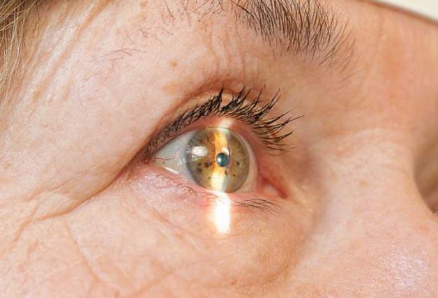 Глазные капли Визин: инструкция по применению, цена, отзывы и аналоги