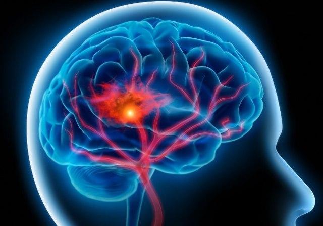 Специальный белок снижает вред, наносимый мозгу после инсульта