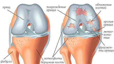 Диета при остеоартрозе коленного сустава