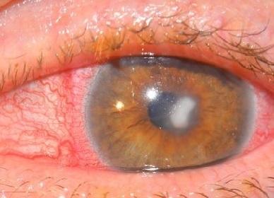 Симптомы и лечение кератита