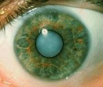 Симптомы и лечение катаракты