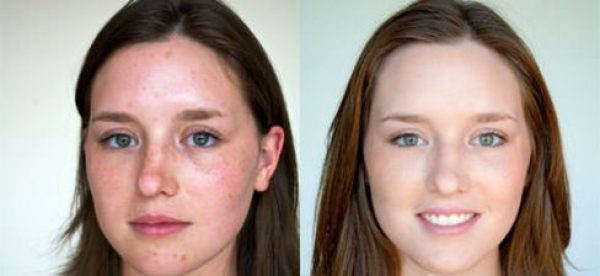 Просянка на лице: как избавиться, удаление милиумов на лице