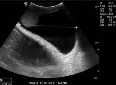 Симптомы и лечение гидроцеле (водянки оболочек яичек)