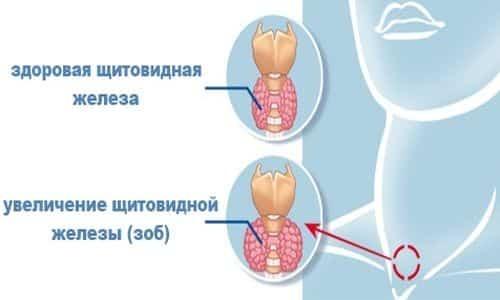 Диета при зобе щитовидной железы