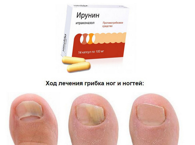 Ирунин: инструкция по применению, цена, отзывы при грибке ногтей, молочнице, аналоги