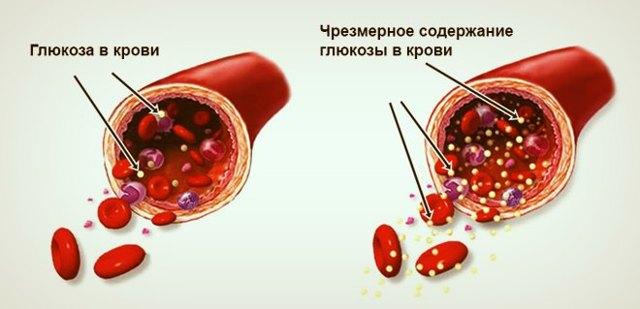Диета при повышенном инсулине крови