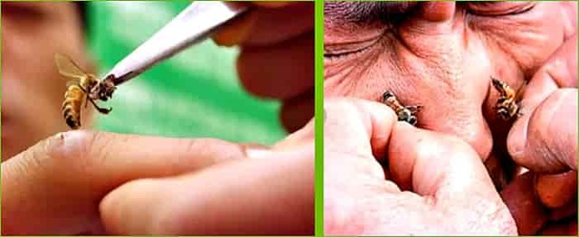 Лечение укусами пчёл или апипунктура