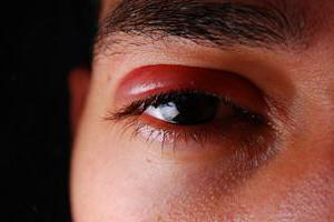 Глазной гель Зирган: цена и инструкция по применению