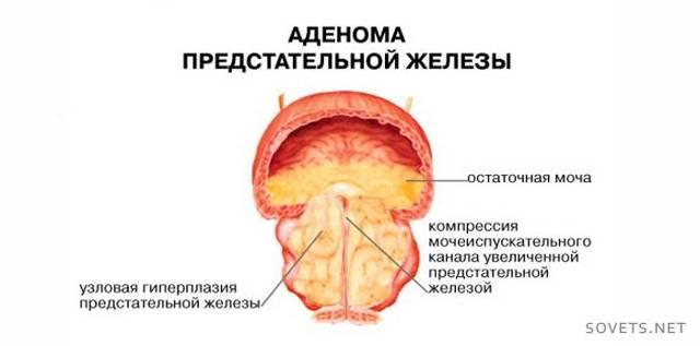Симптомы и лечение аденомы