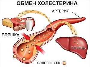 Диета при повышенном холестерине, примерное меню питания при высоком холестерине у женщин