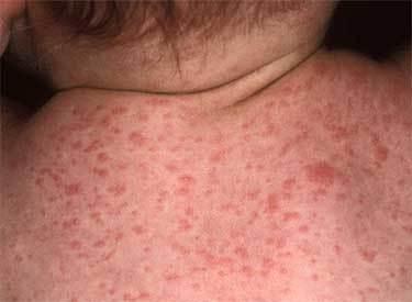 Лечение розеолы у детей, симптомы, фото