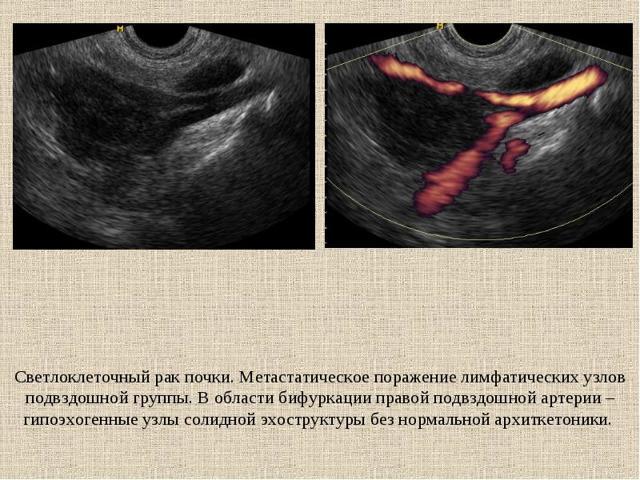 Светлоклеточный рак почки: причины и факторы риска